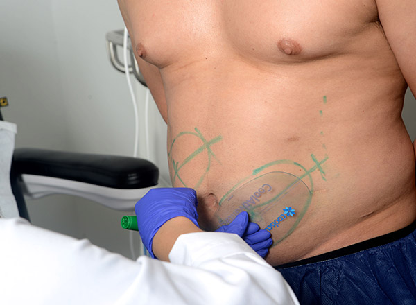 Get CoolSculpting Results in Los Angeles from Dr  Brian